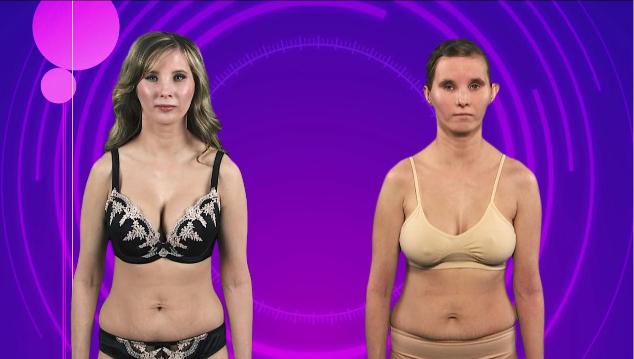 kortsus nahk rinnad parast kaalulangust