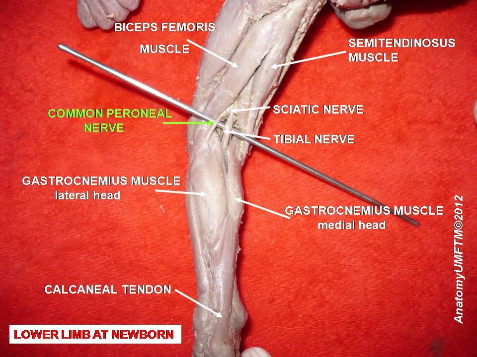 peroneaalne neuropaatia ja kaalulangus kahjum kaal koigepealt