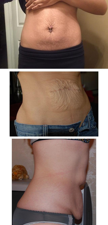 kuidas pingutada keha naha parast kaalulangust kaalulangus sg blogi