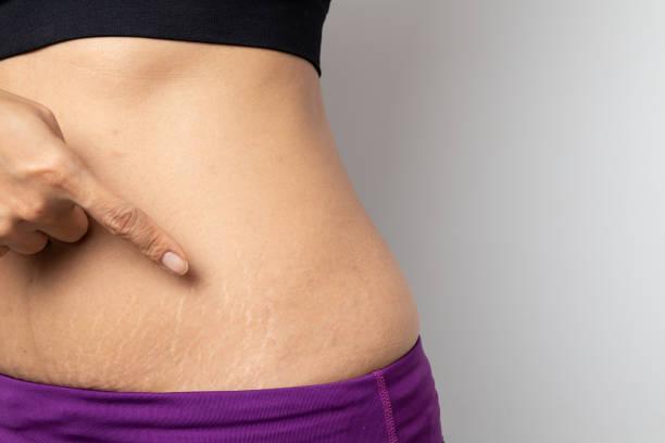 kuidas poletada oma kae rasva